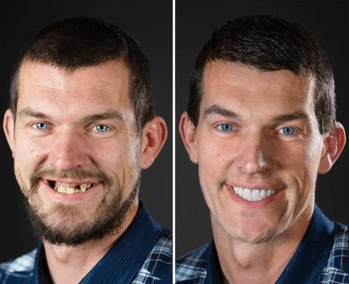 Implante Dentário: Custo, Tempo de Cicatrização e Recuperação