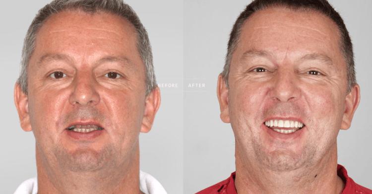Implantes Dentários ou Dentaduras – Qual a Melhor e suas Vantagens