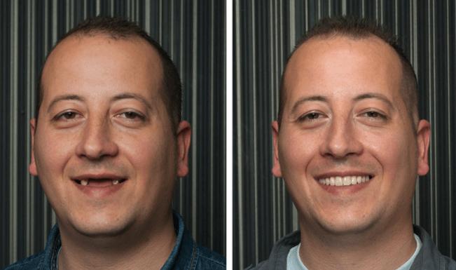 Implante Dentário Melhora Auto Estima de Pacientes (Veja o Antes e Depois)