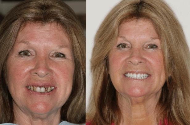 Inchaço após colocação de implante dentário