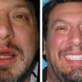 Foto De Implante Dentário Antes E Depois