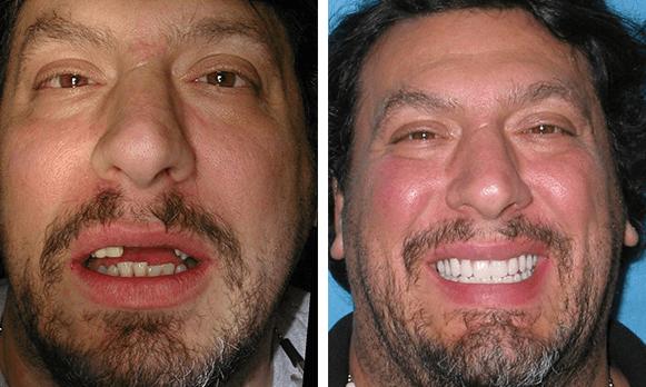 A Odontologia e a Implantologia Dentária