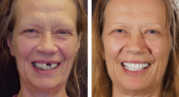 Implante dentário sem cortes nas gengivas? É mesmo possível!