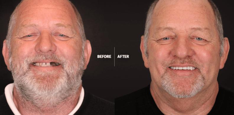 Por que escolher implantes dentários? São uma boa solução para substituir os dentes perdidos