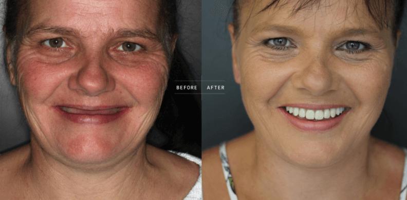Implantes dentários Titanium Fix – São Paulo