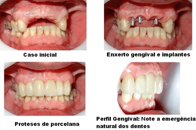 Foto De Implante Dentário E Enxerto Gengival Antes E Depois