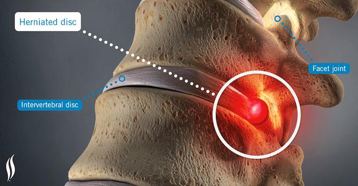 5 Possíveis Tratamentos para a Hérnia de Disco