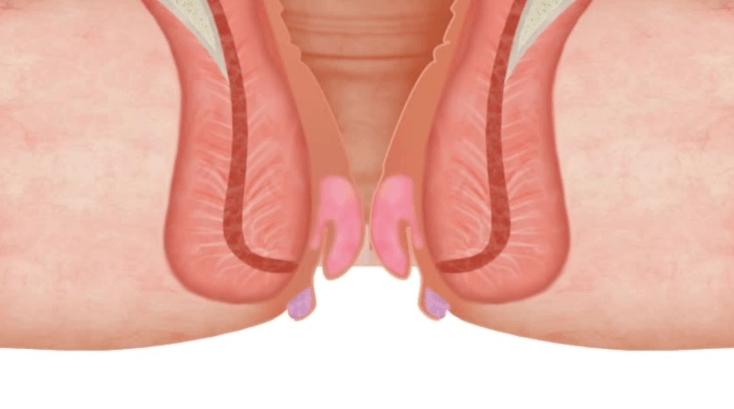 Hemorroidas Internas E Externas