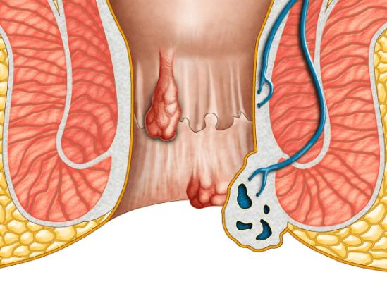 8 Remédios Caseiros para Hemorroidas (Apoiados pela Ciência)