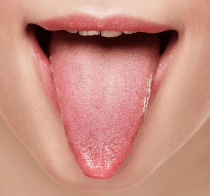 Sensação De Dormência E Formigamento Na Língua