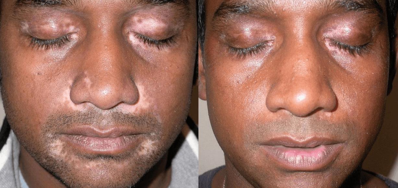 Antes E Depois Do Tratamento Do Vitiligo