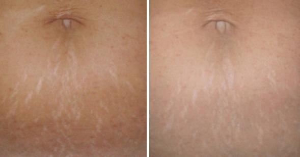 Estrias Antes E Depois Do Tratamento Com Ácido Hialurônico