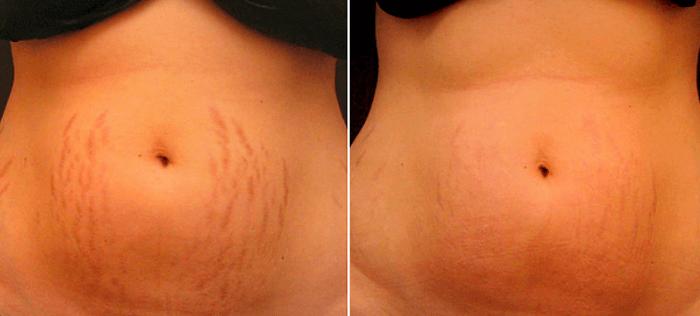 Estrias Depois Do Tratamento Com Laser