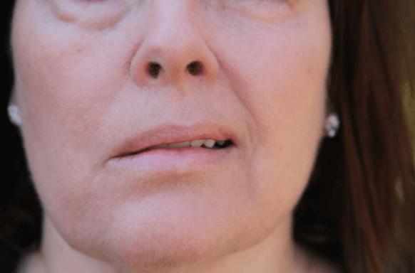Foto De Mulher Com Paralisia Facial De Bell
