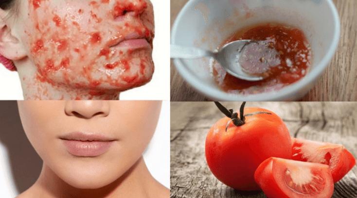 Máscara Facial De Tomate E Açúcar