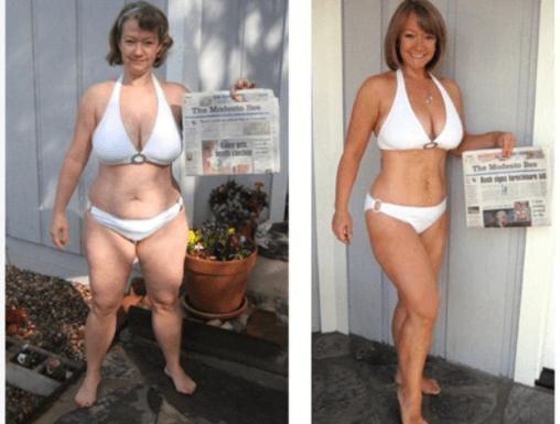 Mulher Antes E Depois Do Emagrecimento