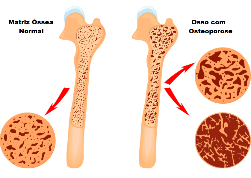 12 Causas de Osteoporose e Perda Óssea, que Você Deve Saber