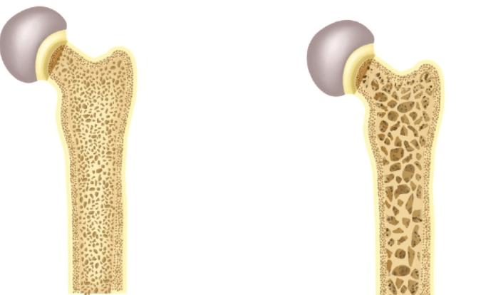 Perda óssea Causada Pelo Tratamento Da Endometriose