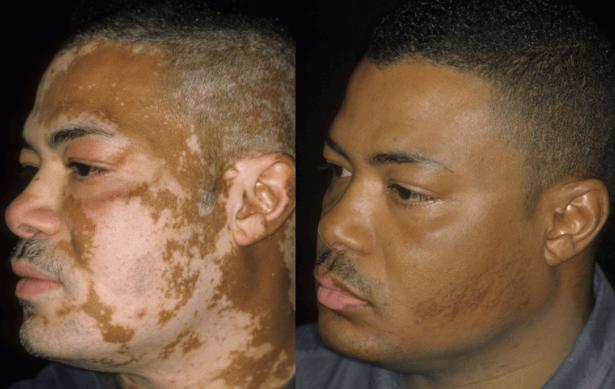 Vitiligo No Rosto Antes E Depois Do Tratamento