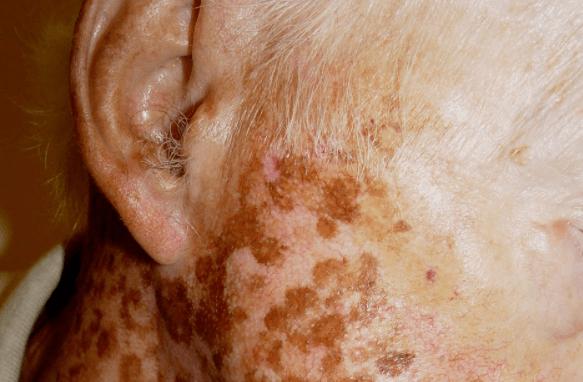 16 Poderosos Tratamentos Caseiros para Vitiligo e Melhorar a Pigmentação