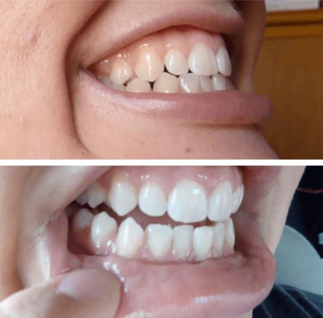 8 Receitas Caseiras Para Clarear Os Dentes Rapido Em Casa Sem