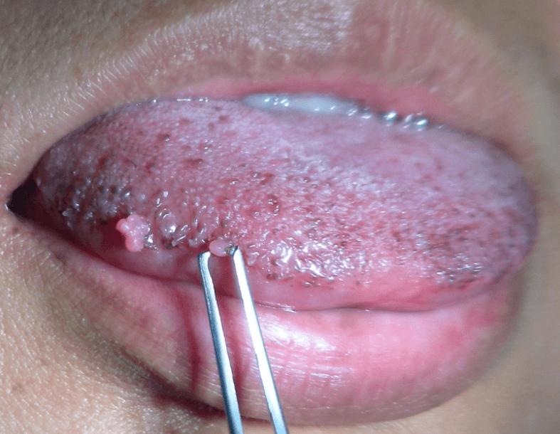HPV Na Língua