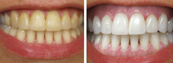 Peróxido De Hidrogénio Diluído Para Tirar Manchas Dos Dentes