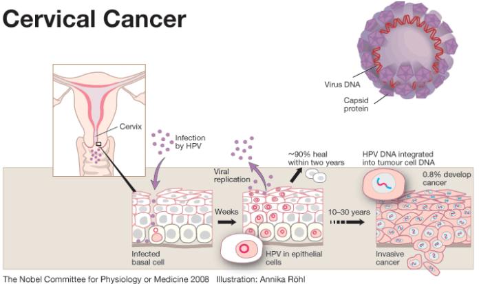 hpv gum cancer