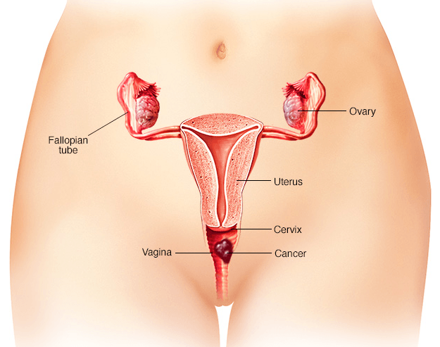 Câncer de Vagina: Sintomas, Causas e Tratamento