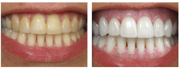 8 Receitas Caseiras Para Clarear os Dentes Rápido em Casa (Sem Destruir o Esmalte)