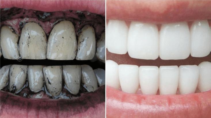 Clarear Os Dentes Com Carvão Ativado