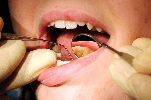 Cureta Para Remover Tártaro Dos Dentes