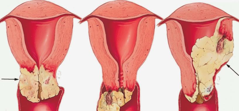 Foto De Câncer De Vagina