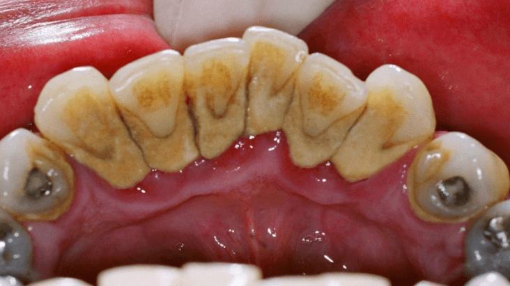 Remédios Caseiros para Remover Tártaro e Placa Bacteriana dos Dentes