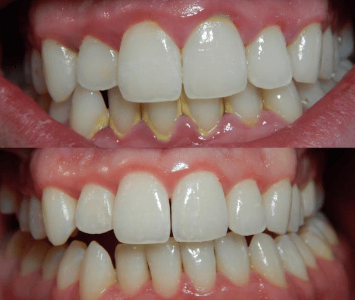 Remédio Caseiro Para Remover Tártaro dos Dentes