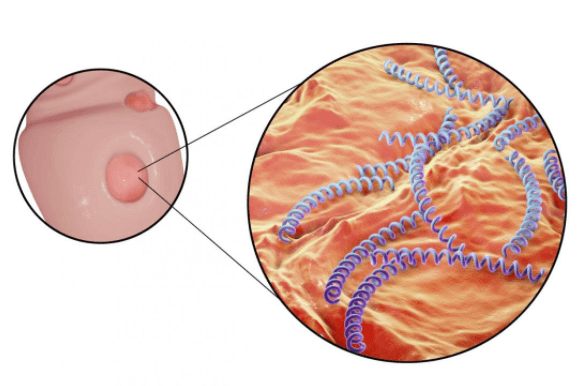 A Sífilis é Transmitida Através De Feridas, úlceras Principalmente Presentes Nos Orgãos Genitais