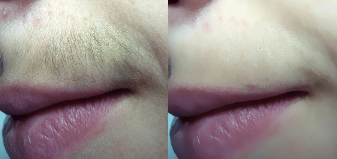 Antes E Depois De Remover Os Pelos Do Buço Acima Do Lábio Superior Com Receitas Caseiras
