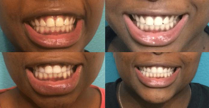 4 Opcoes De Clareamento De Dentes Natural Para Dentes Amarelos E Com