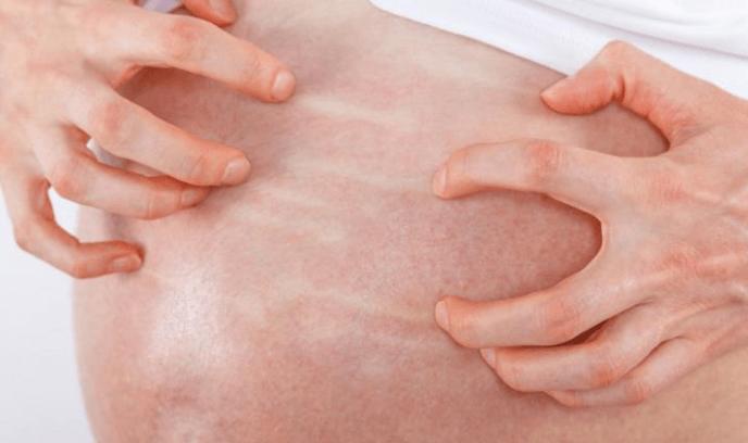 Colestase da Gravidez: Sintomas, Causas e Tratamentos