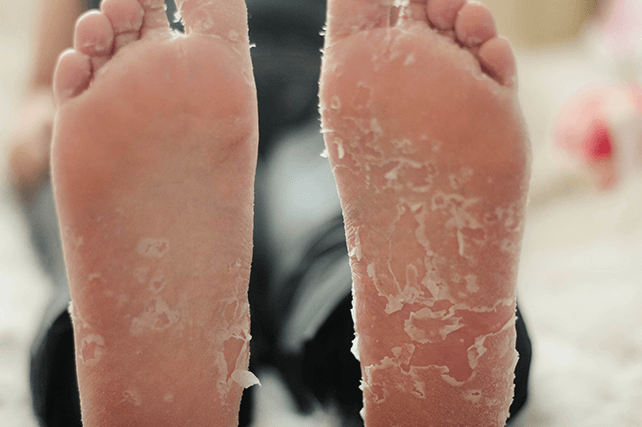Como Se Livrar Da Descamação Da Pele Nos Pés