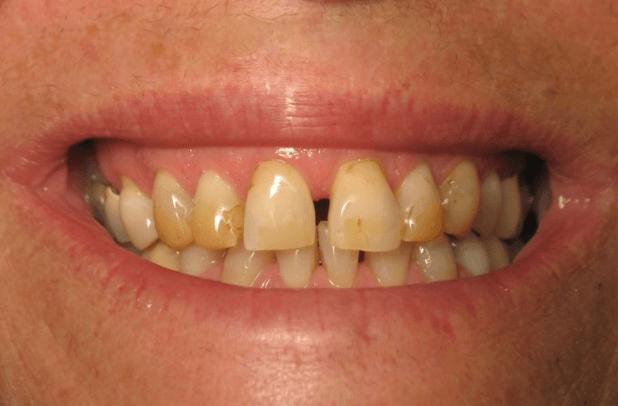 4 Opções de Clareamento de Dentes Natural Para Dentes Amarelos e com Manchas Escuras