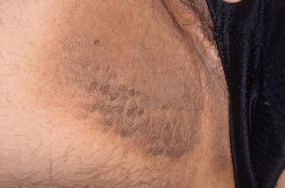 Hiperpigmentação Da Parte Interna Das Coxas, Virilhas