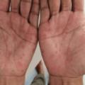 Sífilis Nas Mãos