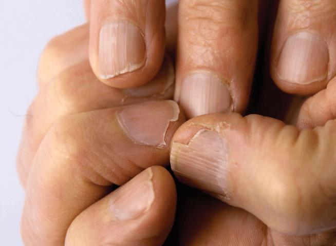 Unhas Frágeis ou Quebradiças: Conheça as Causas e 9 Tratamentos Caseiros Eficazes