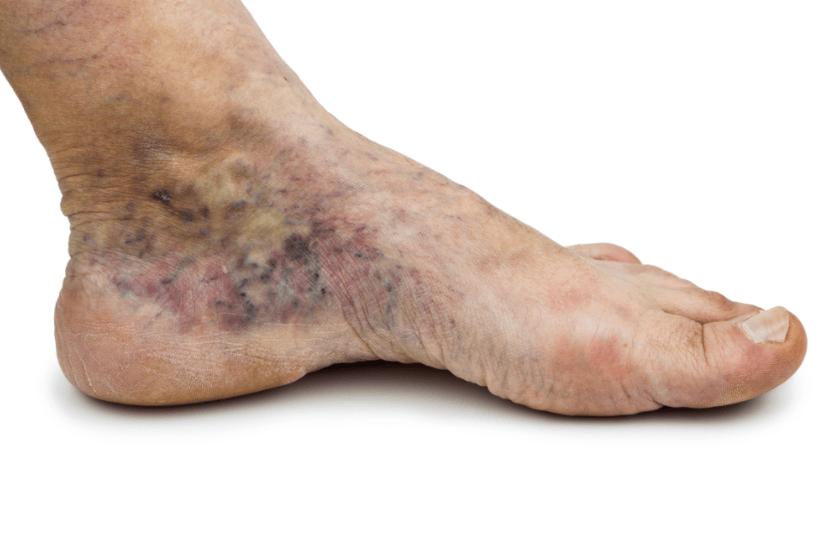 úlceras Nos Pés Causadas Por Varizes Em Estágios Avançados