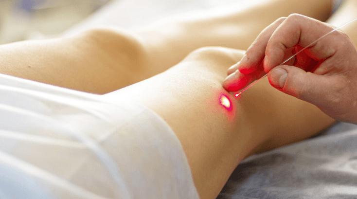 Ablação A Laser Para Remover Varizes