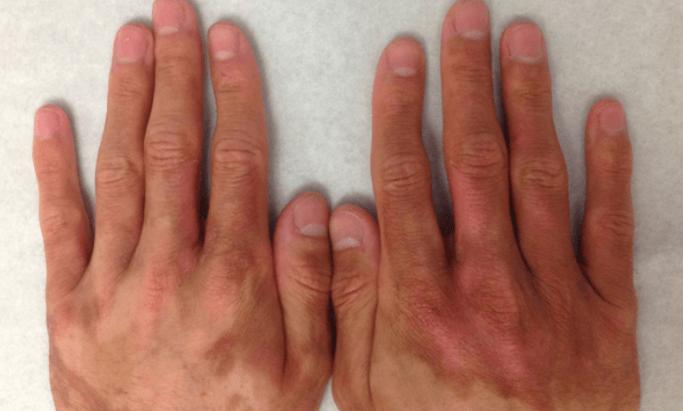 Os Melhores Tratamentos para Manchas na Pele