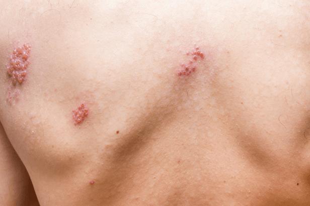 Zona Ou Cobreiro (herpes Zoster) Nas Costas