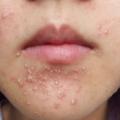 Aparecimento De Acne No Rosto Depois De Comer Amêndoas é Um Sintoma De Intolerância