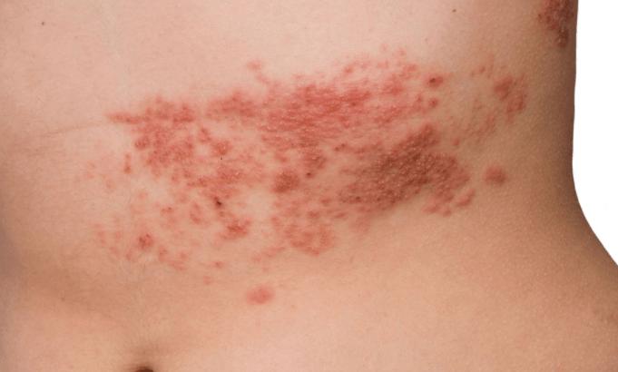 Erupções Na Pele Privocadas Pelo Vírus Herpes Zoster